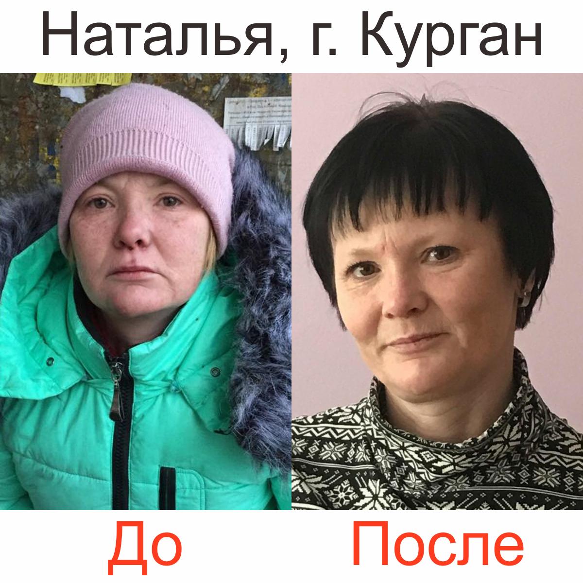 фото женщины до и после реабилитации от алкоголя