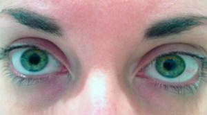 фото глаз при употреблении наркотика винт (метамфетамин)
