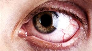 глаз человека, кто курит шишки или бошки фото